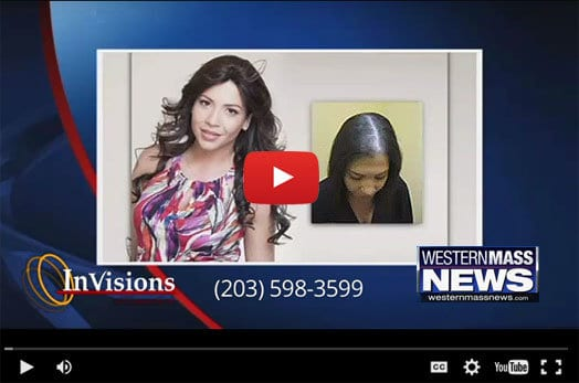 Connecticut Female Hair Loss Solutions Western Mass News