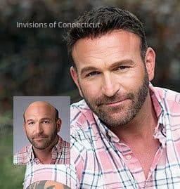 Non-surgical hair replacement men CT Connecticut