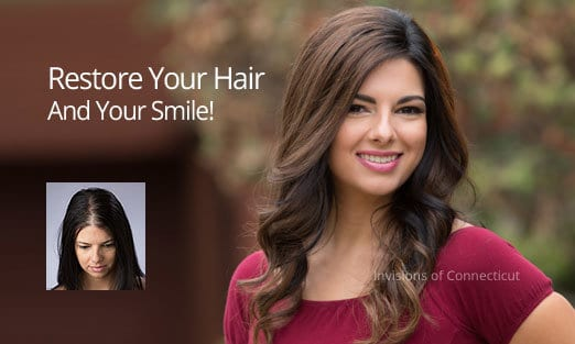 non-surgical hair replacement women connecticut CT