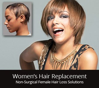 womens hair restoration replacement middlebury connecticut
