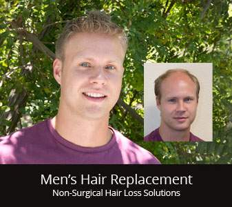 mens hair restoration replacement CT