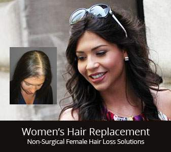 womens hair restoration replacement middlebury CT