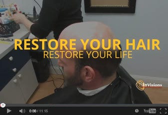 Mens hair replacement Connecticut