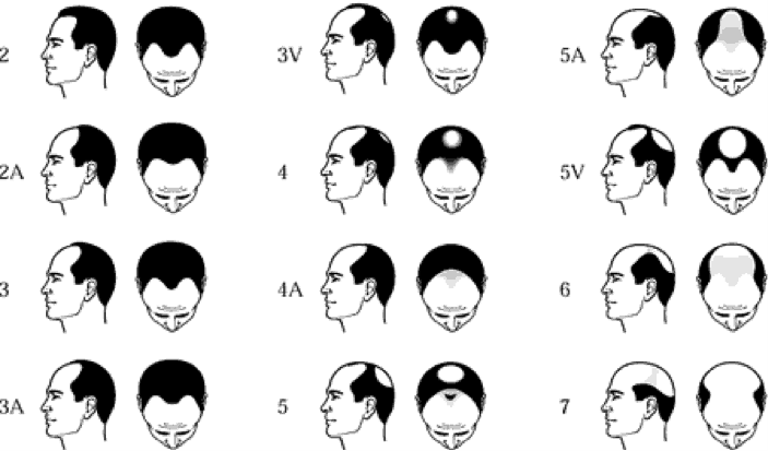 Hair Transplants: Norwood scale of male pattern baldness