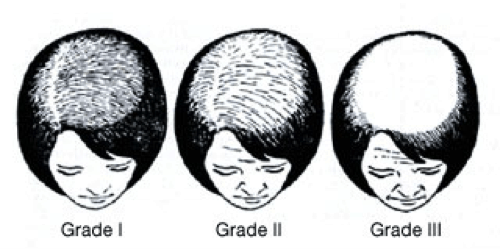 Ludwig Scale Of Female Pattern Baldness