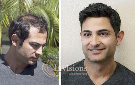 Men's Hair Loss Restoration Replacement Connecticut CT