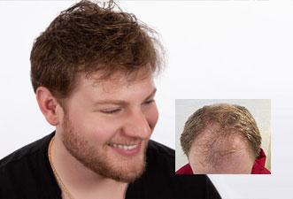 best mens hair loss solutions connecticut