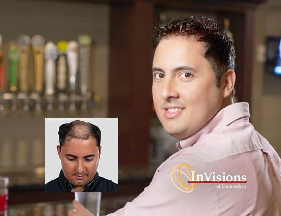 Mens hair loss restoration New Haven Waterbury CT