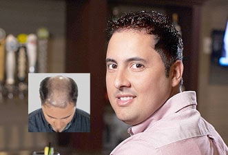 mens hair restoration middlebury connecticut