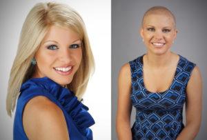 Kayla Martell - Alopecia Sufferer