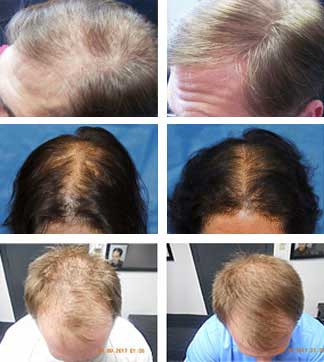 Laser Hair Loss Treatment Therapy Connecticut