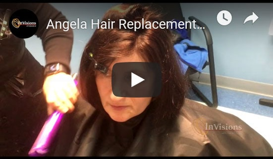 womens hair replacement connecticut testimonial demonstration