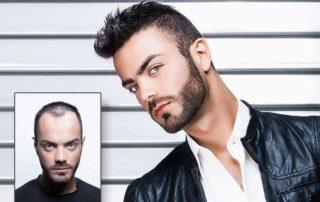 Hairskeen Modern Hair Replacement for Men