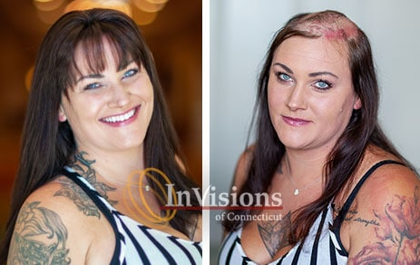 female hair loss replacement wigs connecticut