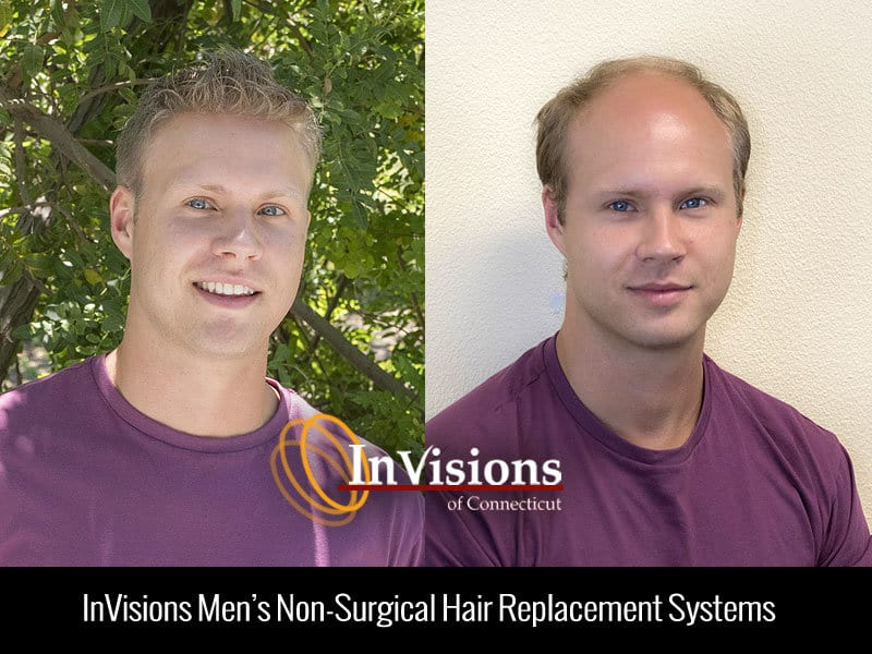 Mens Hair Replacement Systems Connecticut