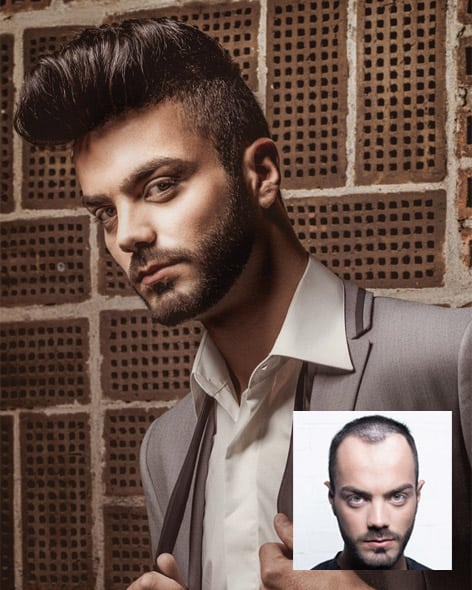 Non-Surgical Hair Replacement for Men - Hairskeen Hair Middlebury, CT