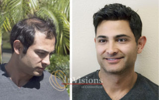 Mens hair loss restoration replacement CT