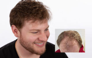 best mens hair replacement connecticut