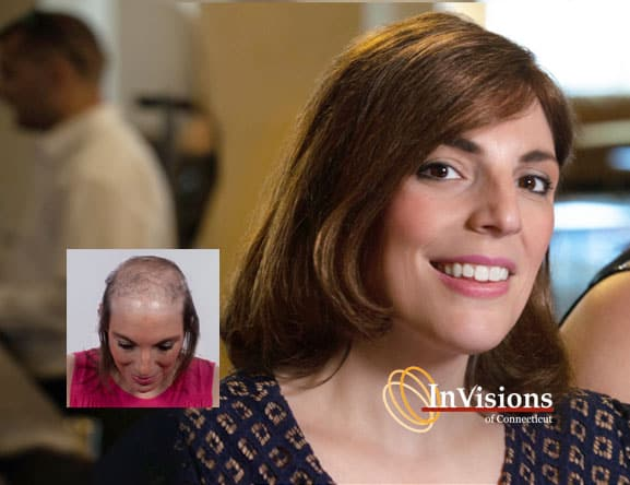 female hair loss replacement connecticut waterbury new haven