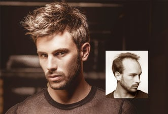 best mens hair restoration connecticut