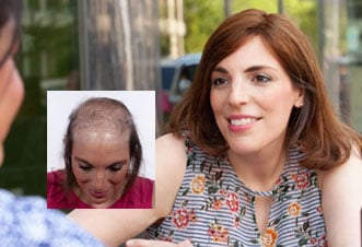 womens hair loss replacement connecticut