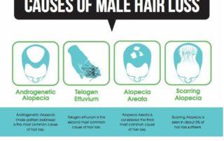 hair loss statistics men women connecticut