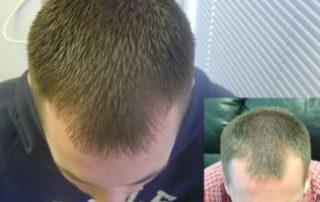 laser hair loss rejuvenation regrowth connecticut
