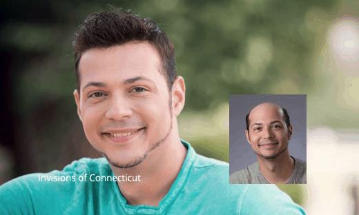 Natural Looking Men's Hair Replacement