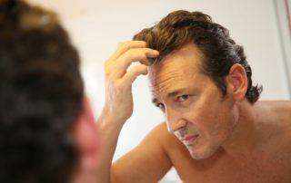 Men's Thinning Hair