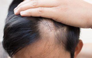 thinning Hair Treatment for men