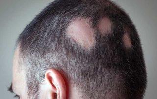 Alopecia Areata Hair Loss