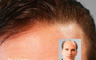 mens hair restoration replacement connecticut