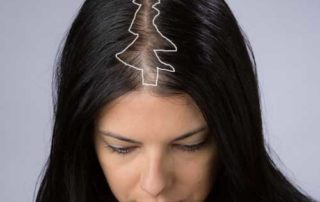 Christmas Tree Pattern Hair Loss