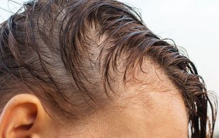 covid 19 hair loss stress