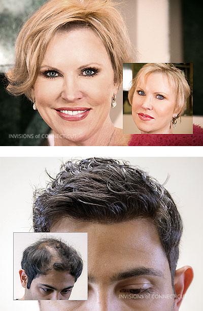 non-surgical hair replacement men women Connecticut