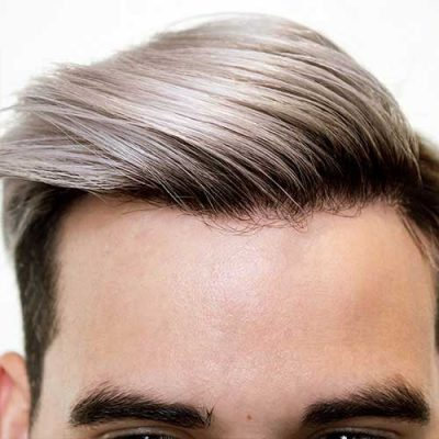Men's Hairline